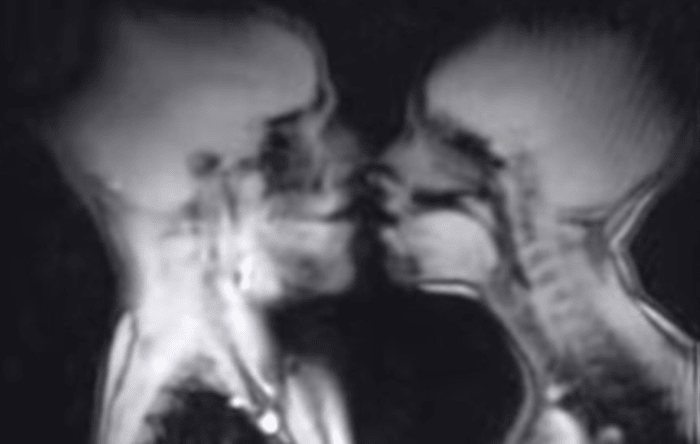 This Is What Sex And Other Things Look Like Inside An Mri Machine - Airows-3355
